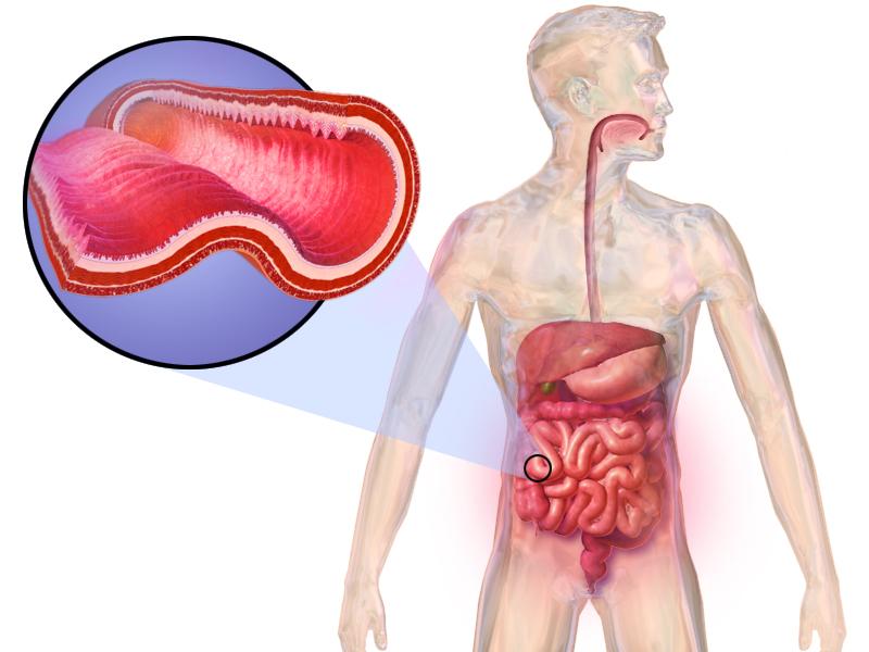 Vitamin D in Crohnova bolezen